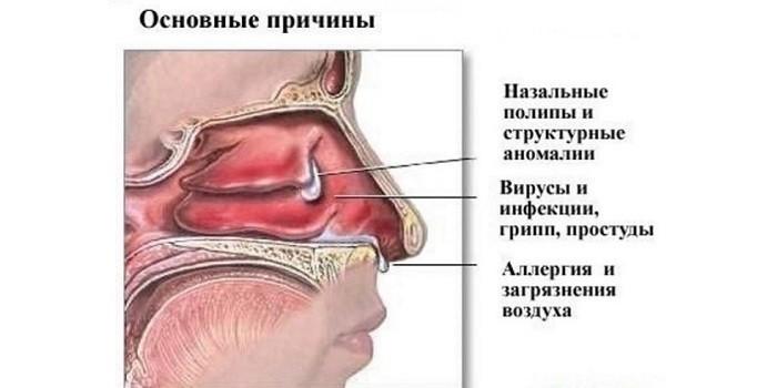 Основные причины воспаления