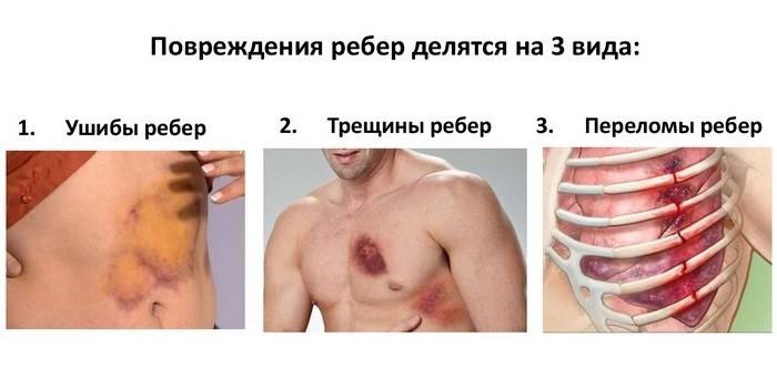 Виды повреждений ребер
