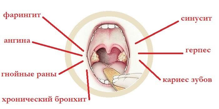 Причины развития стафилококковой инфекции