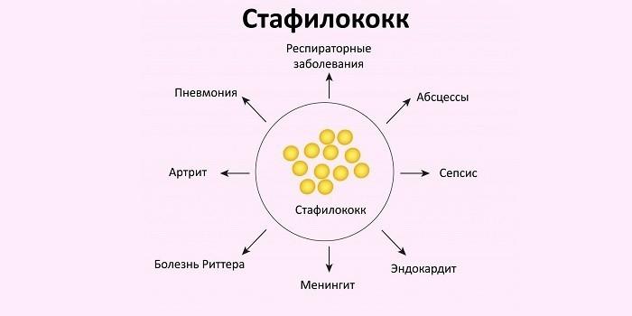 Осложнения, вызванные бактериофагами