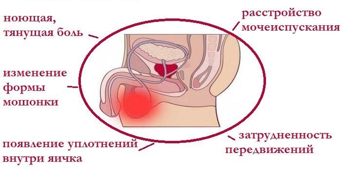 Симптомы острой формы водянки