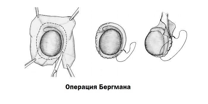 Операция Бергмана
