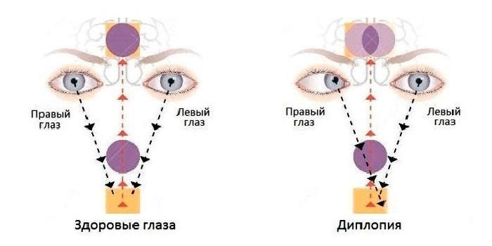 Здоровые глаза и диплопия