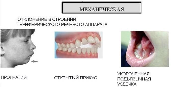 Этиология механической формы заболевания