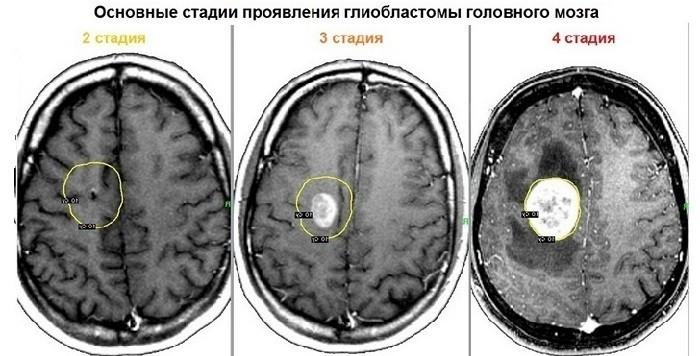Стадии опухолевого развития