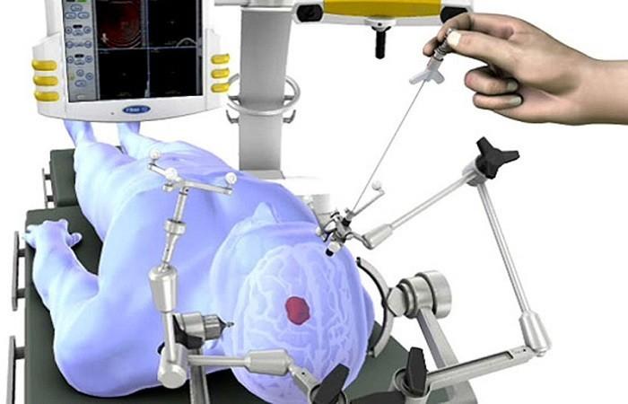 Проведение операции на мозге