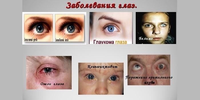 Патологии глаз