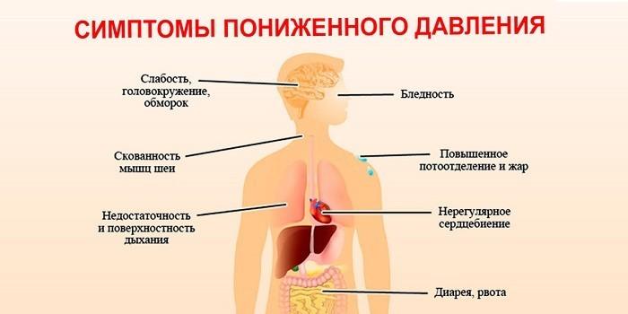 Симптоматика гипотонии