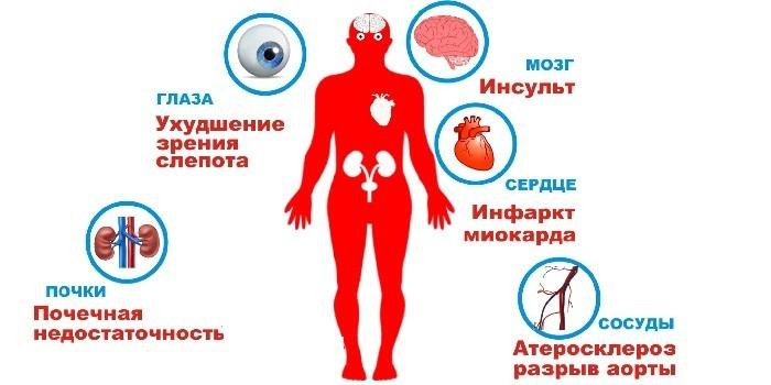 Органы мишени при гипотонии
