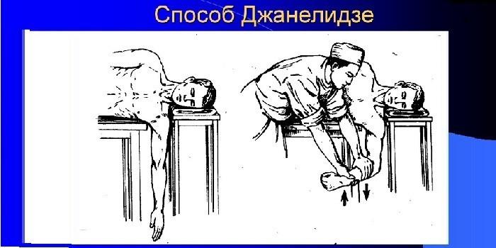 Метод Джанелидзе