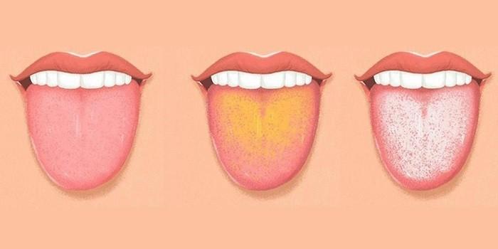 Здоровый язык, с белым и желтым налетом