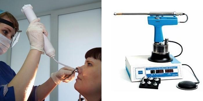 Операция с применением жидкого азота