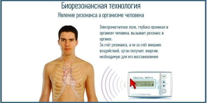 Действие биорезонансной терапии на организм человека