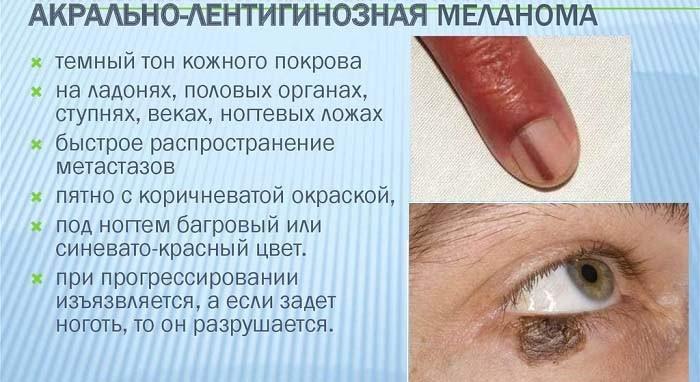 Симптоматика лентигинозной меланомы