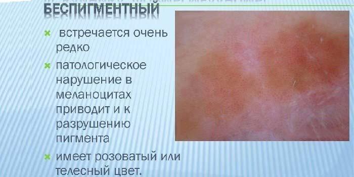 Признаки беспигментной опухоли кожи