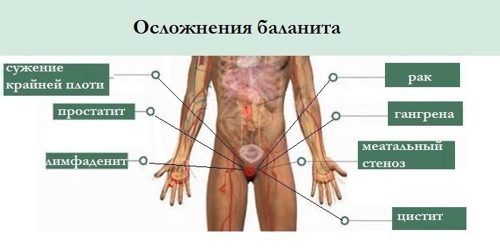 Осложнения патологии