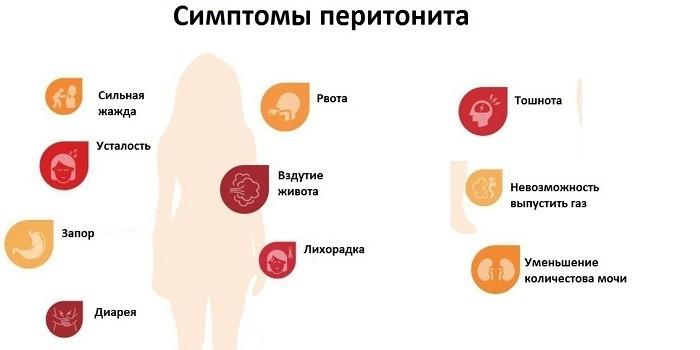 Признаки перитонита
