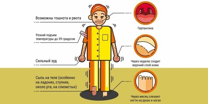 Симптоматика болезни у детей