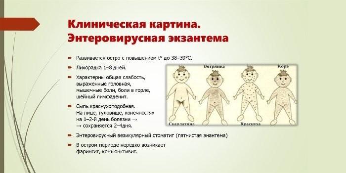 Энтеровирусная лихорадка
