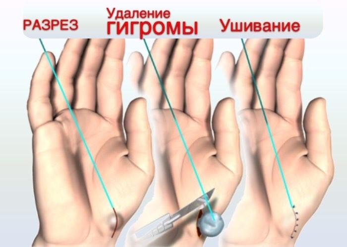 Этапы операции
