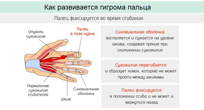 Как развивается гигрома пальца