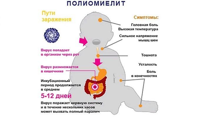 Пути заражения вирусом полиомиелита