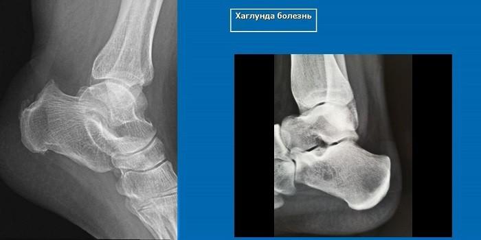 Признаки синдрома Шинца на рентгене