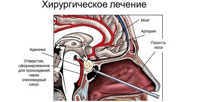 Хирургическое удаление аденомы гипофиза