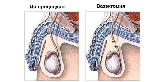 Что такое вазэктомия