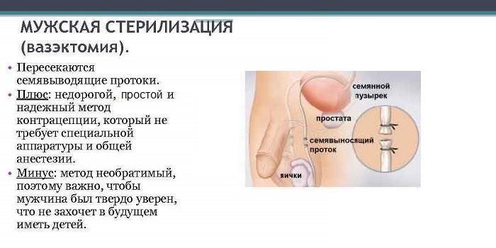 Плюсы и минусы мужской стерилизации