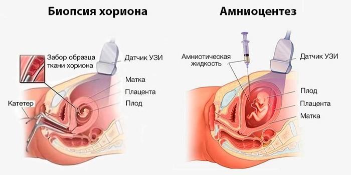 Проведение биопсии хориона и амниоцентеза