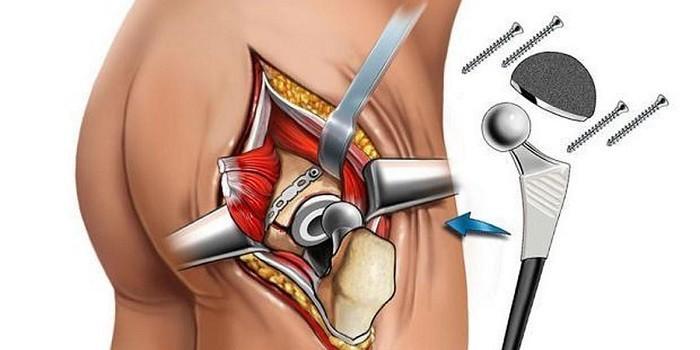 Техника проведения операции