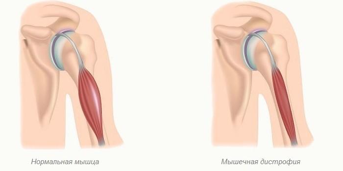 Нормальная и дистрофическая мышца