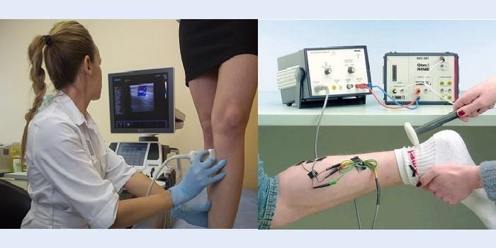 Диагностика нарушения кровообращения в ногах