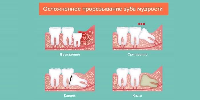 Осложненное прорезывание мудрого зуба