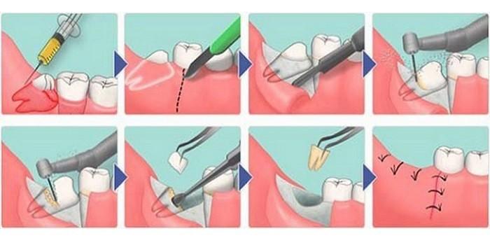 Процедура удаления зуба мудрости