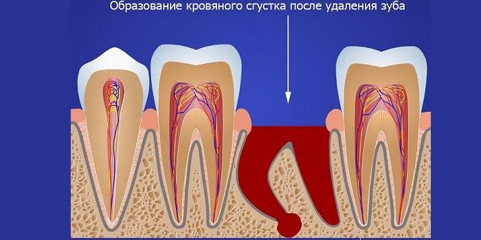 Образование кровяного сгустка после удаления зуба