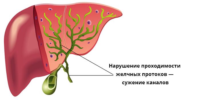 Сужение желчных каналов