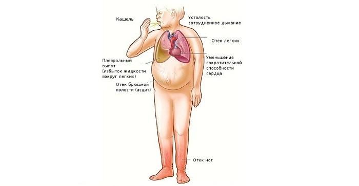 Опасные симптомы одышки