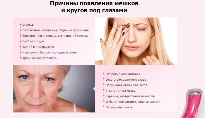 Причины появления кругов под глазами