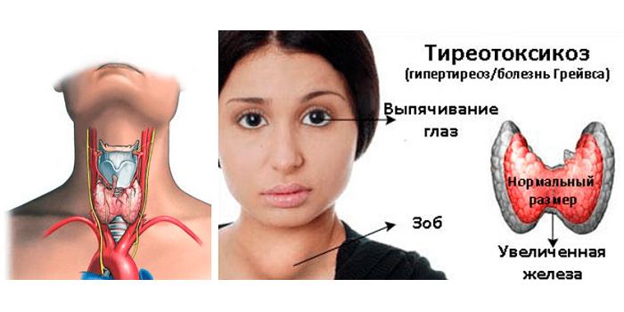 Болезнь Грейвса (гипертиреоз)