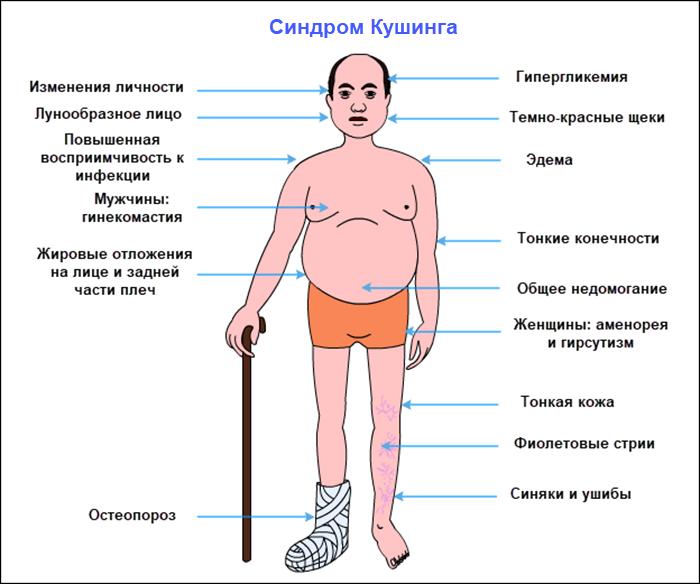 Симптомы синдрома гиперкортицизма