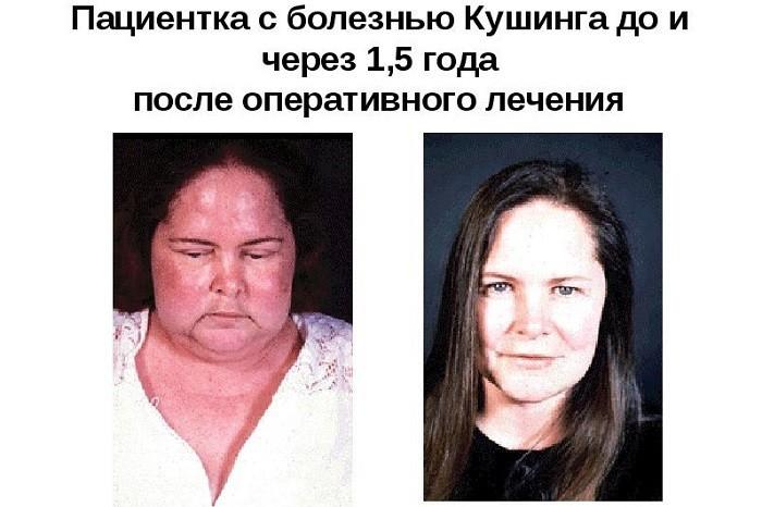 Пациентка до и после оперативного лечения