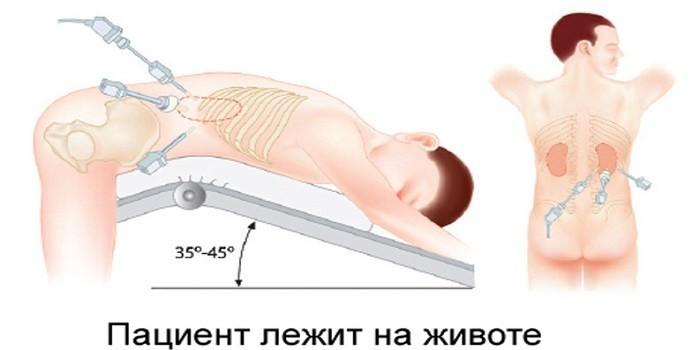 Техника проведения адреналэктомии