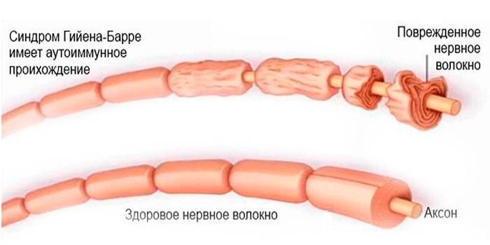 Повреждение нервного волокна