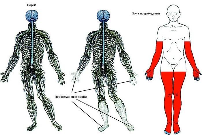 Поражение нервов конечностей