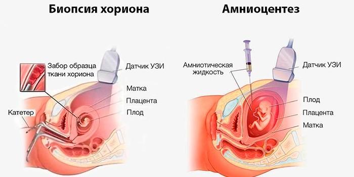 Биопсия хориона и амниоцентез