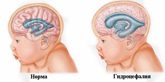Скопление мозговой жидкости