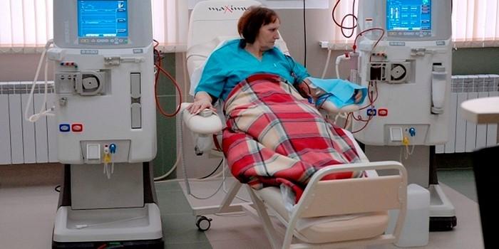 Пациентка на процедуре гемодиализа