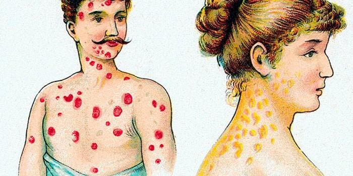 Поражения кожи при заболевании